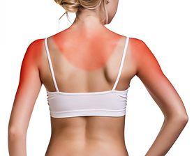 Naturalne sposoby na leczenie oparzeń słonecznych (WIDEO)