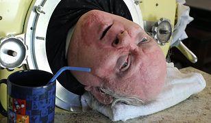 Paul Alexander od 68 lat żyje w żelaznym płucu