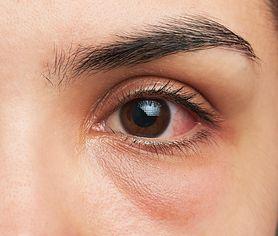 Czerwone oczy - zapalenie spojówek, alergia, zapalenie błony naczyniowej, zmęczenie