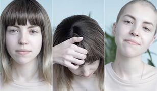 To nagranie łapie za serce. Chora nastolatka w piękny sposób mówi o swojej chorobie