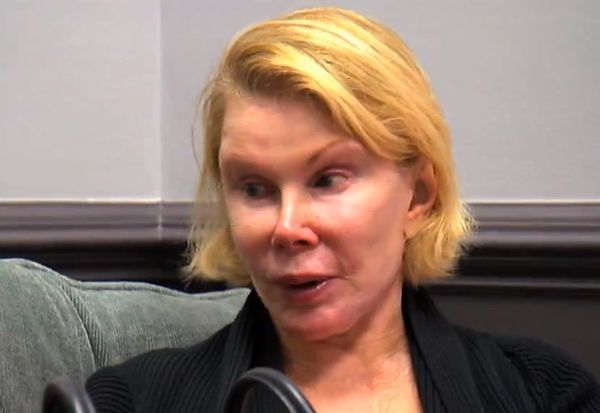 Joan Rivers przeszła kolejną operację plastyczną!