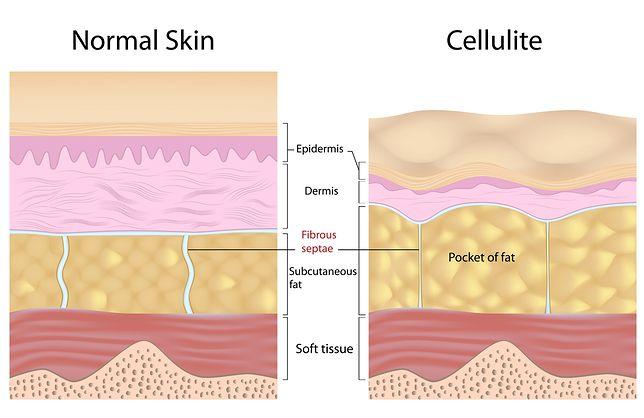 Skóra normalna kontra skóra z cellulitem