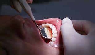 Dentysta miał wyłudzić pół miliona złotych. Ponad 900 osób zeznało, że nie wykonał im zabiegów