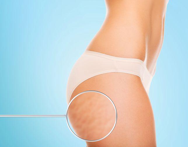 Cellulit, nazywany pomarańczową skórką, to wstydliwy defekt estetyczny.