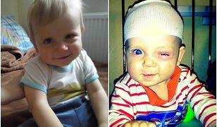 Szymon Kądziela walczy z siatkówczakiem oka. Potrzebuje 2 miliony złotych na operację!