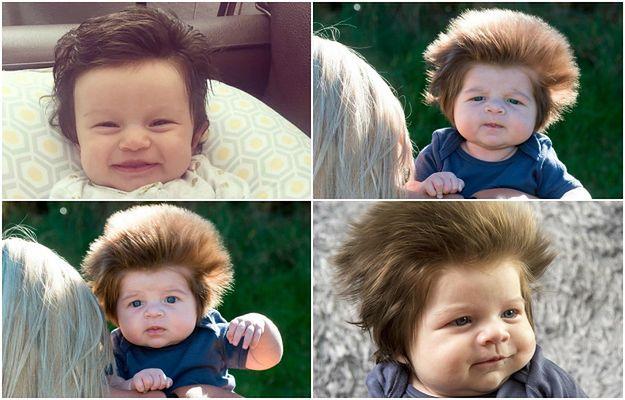 Ten 9-tygodniowy chłopiec podbija internet swoimi niesamowitymi włosami