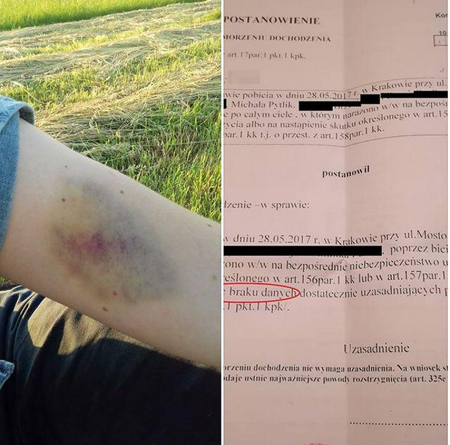 Działacz Razem i jego koledzy z partii zostali zaatakowani w knajpie