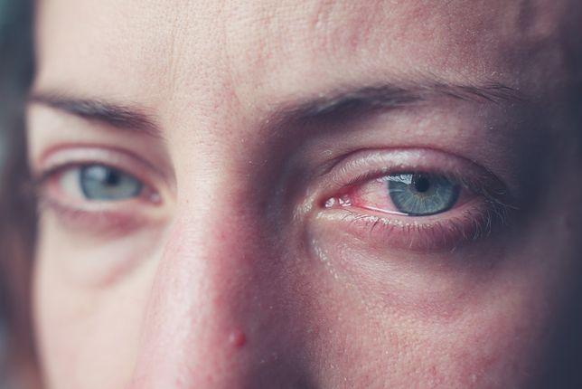 Worki pod oczami, opuchlizna oczu