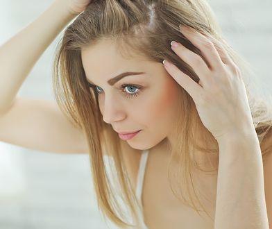 Masz przetłuszczające się włosy? Zobacz, jak szybko rozwiązać ten problem