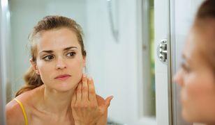 Przebarwienia na twarzy mogą wystąpić po trądziku