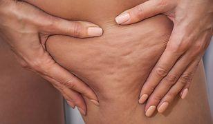 Cellulit na udach: dieta i skuteczne ćwiczenia na cellulit na udach