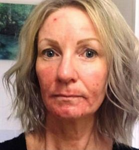 Zabieg miał wygładzić jej zmarszczki. Na twarzy pojawiły się krwawiące rany