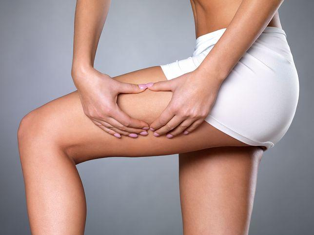Cellulit to pofałdowana, grudkowata i porowata skóra, stąd też potoczne określenie skórki pomarańczowej