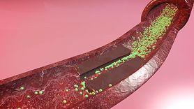Objawy zatkanych tętnic. Warto je znać (WIDEO)