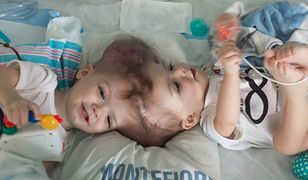 Skomplikowana operacja rozdzielenia bliźniąt syjamskich zakończona sukcesem. Tak wyglądają chłopcy po rozdzieleniu