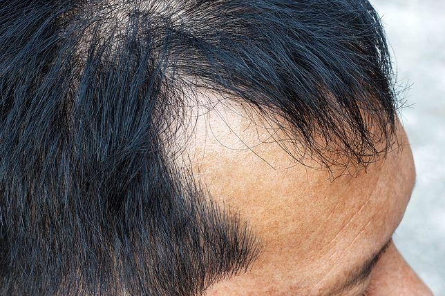 Łysienie androgenowe – objawy, przyczyny i leczenie