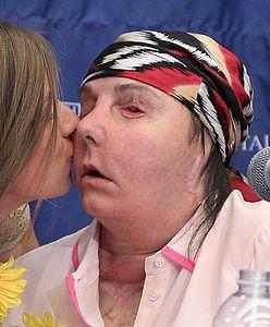 Doczekała się drugiego przeszczepu twarzy. Poruszająca historia Carmen Blandin Tarleton