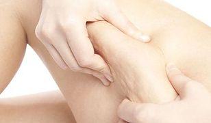 Cellulit a cellulitis – czym się różnią?
