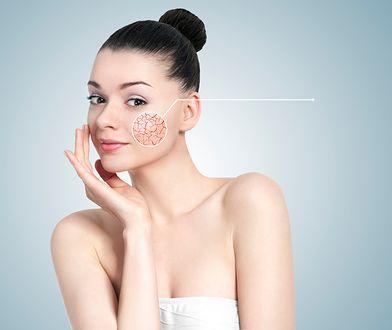 Pękające naczynka można zwalczyć poddając się zabiegom laseroterapii lub elektrokoagulacji.