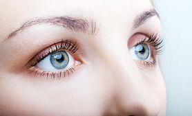 Cienie pod oczami - skąd się biorą, objaw choroby