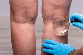 Powikłania po COVID-19. Koronawirus może powodować problemy naczyniowe. Coraz więcej pacjentów z niewydolnością żylną, zakrzepicą i zapaleniem żył