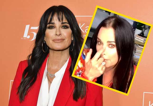 Aktorka złamała nos na planie. Udawała, że nic się nie stało