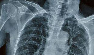 Mięśnie 17-latki zmieniają się w szkielet. Cierpi na rzadką chorobę