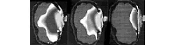 Symulacja zasięgu promieniowania radiowego telefonu przy uchu u dziecka 5-letniego (z lewej), 10-letniego (w środku) i dorosłego (z prawej)