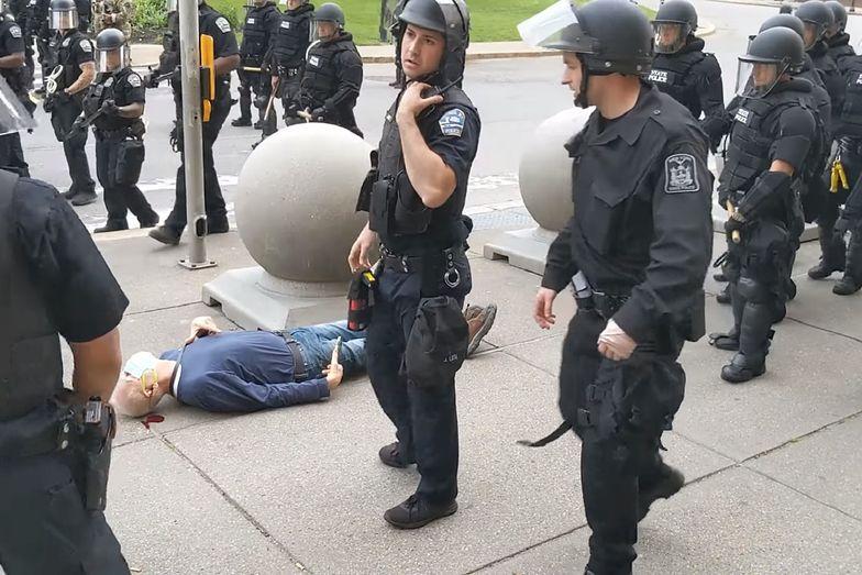 USA. 75-latek, którego popchnął policjant, doznał urazu mózgu