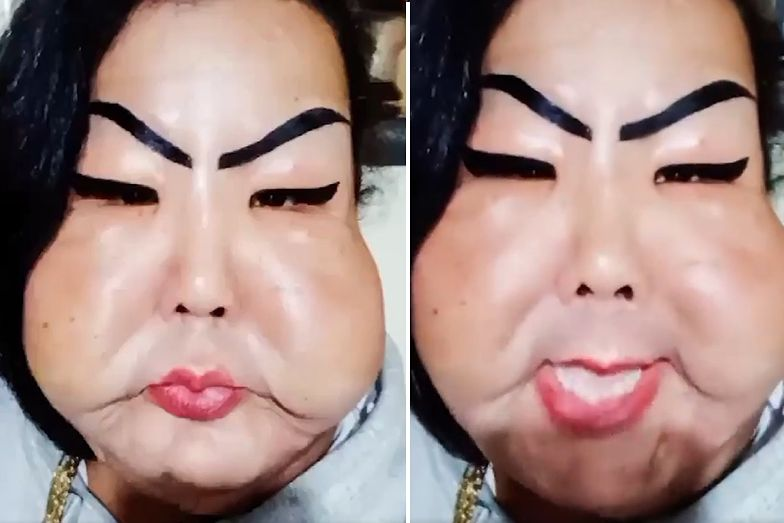 Chciała wypełnić sobie twarz silikonem. Dramat 30-latki
