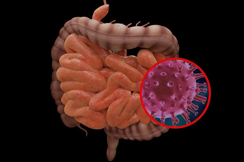 COVID-19. Odkrycie naukowców. To może wpływać na ciężki przebieg choroby