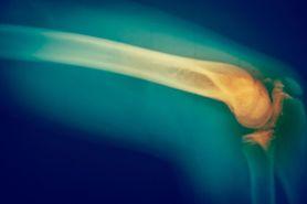 Rak kości. Czym się objawia? (WIDEO)