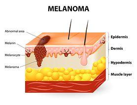 Melanocyty - właściwości, funkcje, najczęstsze schorzenia
