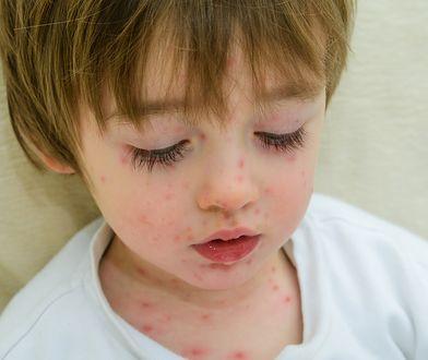 Mamy do czynienia z prawdziwą epidemią grypy.