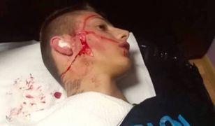 Nastolatek z Kalisza pociął sobie twarz, aby wyglądać jak raper Popek z Gangu Albanii