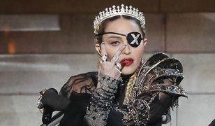 Madonna upadła na scenie. Schodziła z niej ze łzami w oczach