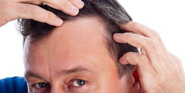 Skuteczny środek w walce z wypadaniem włosów