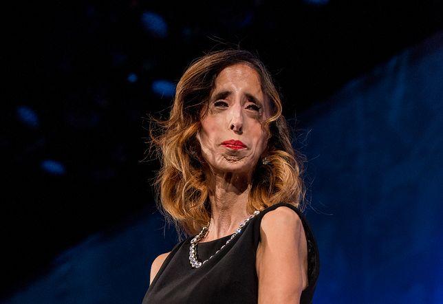 Lizzie Velasquez cierpi na rzadką chorobę