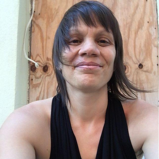 Melanie podjęła decyzję: nie będzie rekonstruować biustu.