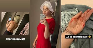 """Julia Wróblewska pokazuje obrażenia po proteście w Warszawie: """"Nikt nie ma prawa nas atakować!"""" (FOTO)"""