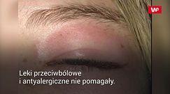 Plaster pod oczy wywołał alergię