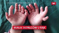 14 palców u rąk. Lekarze musieli wybierać
