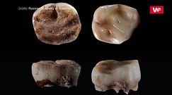 Badacze przebadali zęby sprzed 31 tys. lat