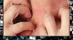 Zapalenie tarczycy Hashimoto [Pixel]