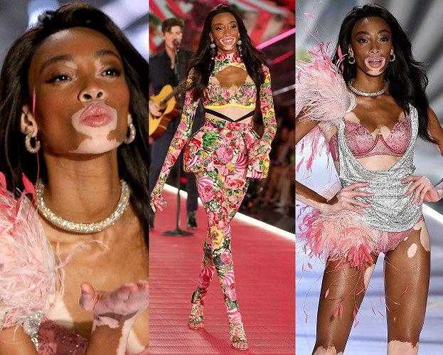 Modelka z bielactwem triumfuje na wybiegu Victoria's Secret