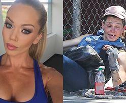 Loni Willison STRACIŁA ZĘBY. Była modelka żebrze na ulicach Hollywood (ZDJĘCIA)