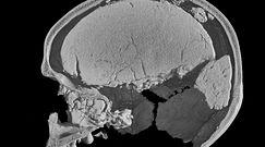 Tajemnica samotnej czaszki. Włoscy naukowcy rozwiązali zagadkę