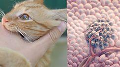 Toksoplazmoza powoduje glejaka mózgu. Naukowcy widzą taki związek