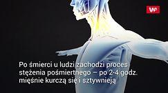 Naukowcy pokazali, jak śmierć rozprzestrzenia się po ciele