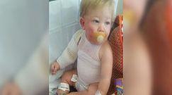 Dziecko poparzone wodą z węża ogrodowego